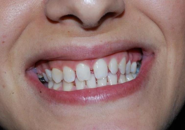 לפני טיפול שיניים